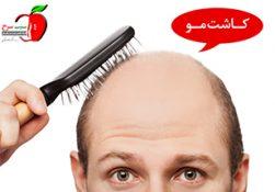آیا روش کاشت مو برای همه افراد یکسان است؟